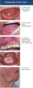 photos-of-possible-oral-cancer